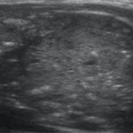 Atypical Thyroid nodules with calcifications