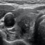 Atypical Thyroid nodules with taller than wide shape.